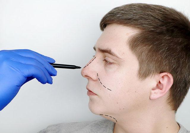 A cirurgia plástica de nariz: como é feita?