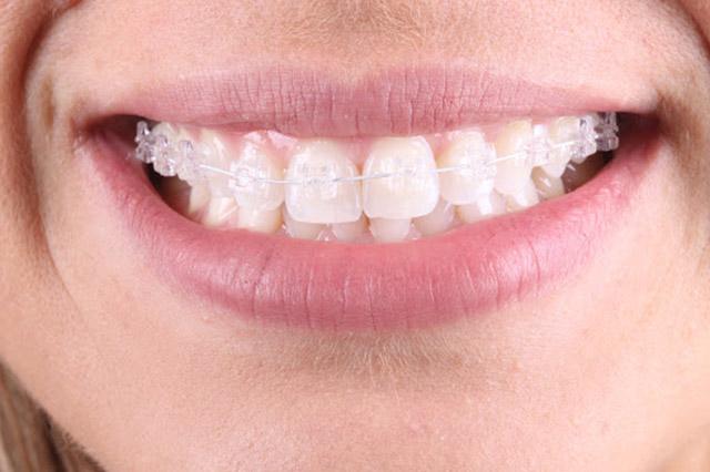 Alinhamento dos dentes é possível