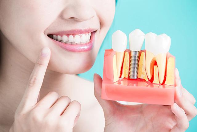 Implantodontia, conheça mais sobre essa área de atuação